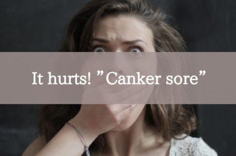 "It hurts! ""Canker sore"""